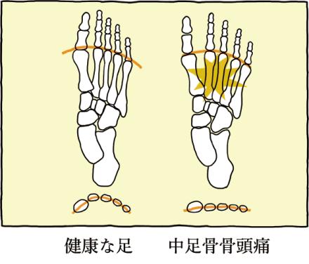 中足骨骨頭痛 » バレエでの中足骨の痛み