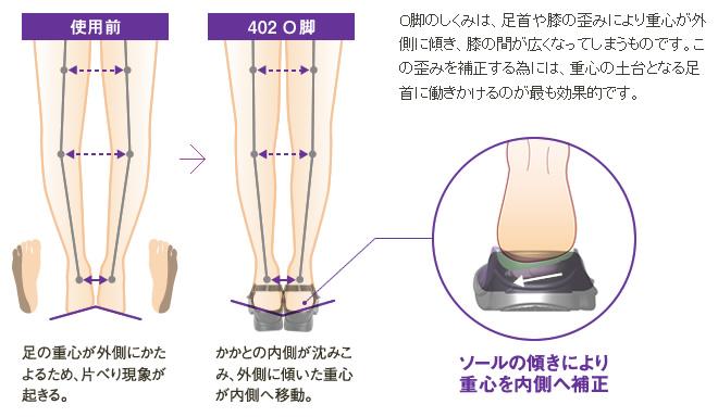 使用前→402 O脚